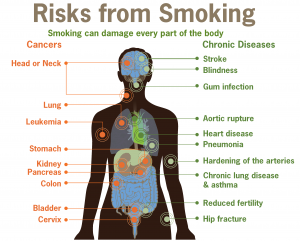 """Smoking can damage every part of the body"""
